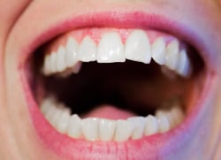 bocca sorridente mostra denti